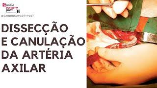 Cirurgia Narrada: canulação axilar na dissecção aguda da aorta.