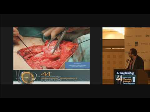 Βαμβακίδης Κυριάκος - Η χρήση της διεγχειρητικής νευροπαρακολούθησης