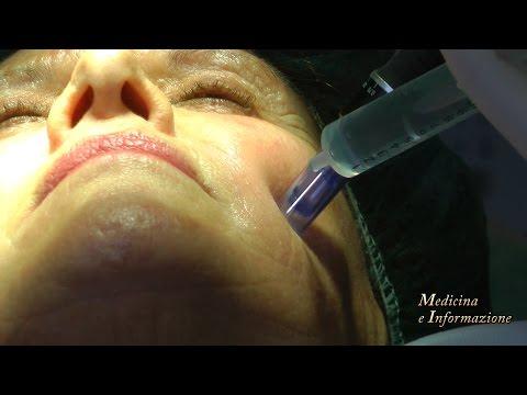 Maschere per pelle intorno a occhi con fragola