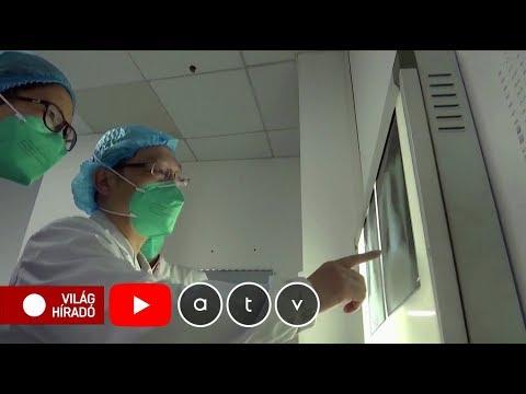 Trichomonas fistula kezelés