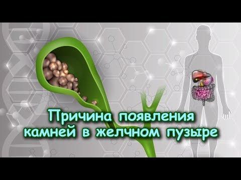 Лечение гепатита 03