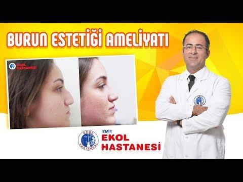 Burun Estetiği Ameliyatı Öncesi Sonrası - Op.Dr.Murat Uygur - İzmir Ekol Hastanesi