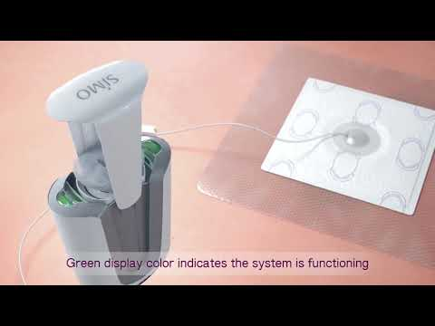 SIMO Negative Pressure Wound Therapy System