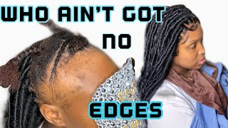 LACE FRONTAL WITH BRAIDS | FOR ALOPECIA | NO WIG