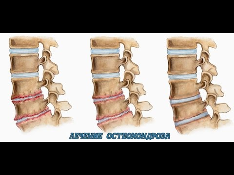 Болит сустав после протезирования