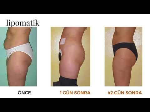 Lipomatik ile Liposuction - Lipomatik
