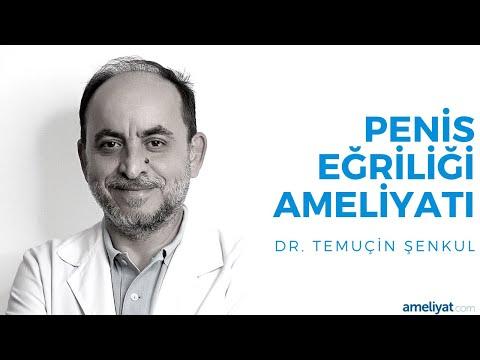 Penis Eğriliği Ameliyatı (Prof. Dr. Temuçin Şenkul)