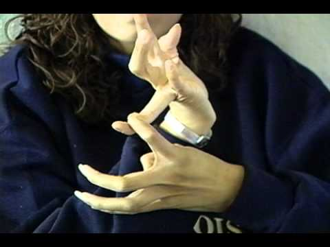 Screenshot of video: Hypermobility & Marfan Syndrome