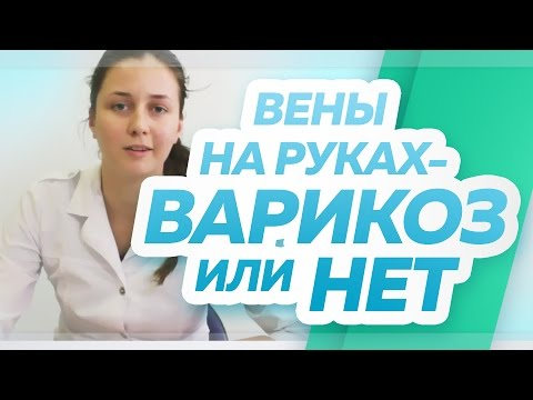 """Вены на руках, варикозная болезнь на руках – есть она или нет? Флебологический центр """"Антирефлюкс"""""""