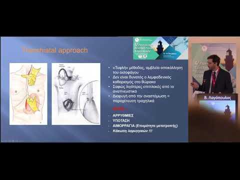 Β. Λαγόπουλος - Επιλογής της εγχειρητικής τακτικής στον καρκίνο του οισοφάγου