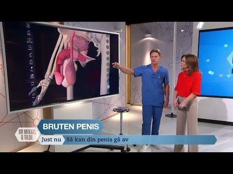 Szukák pénisz