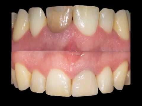 Korona na przebarwionym zębie 21