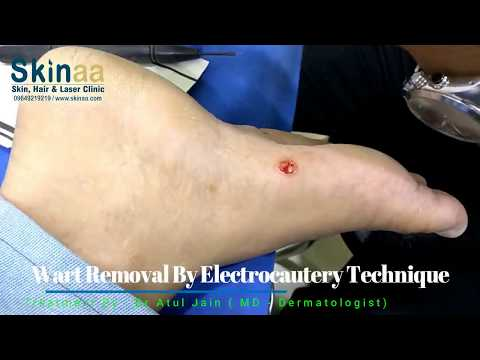 Foot Wart Removal by Electrocautery | Skinaa Clinic | Jaipur