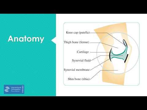 Otthoni artróziskezelő eszközök