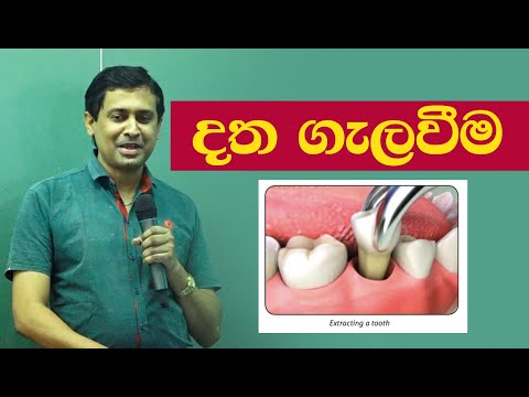Tissa Jananayake - Episode 19 | Tooth Extracting | දත ගැලවීම