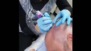 Density SMP Scalp Micropigmentation by El Truchan @ Perfect Definition