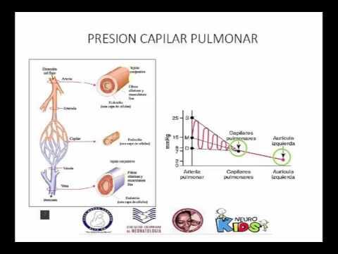 Hierbas para la hipertensión pulmonar