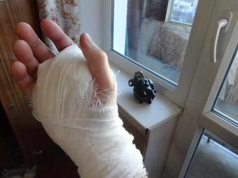 Стенозирующий лигаментит (Щелкающий палец)