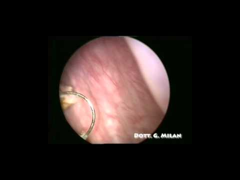 Ovarian cancer from cyst