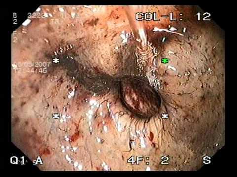 หลอดเลือดดำแมงมุมกำจัด Cherkass