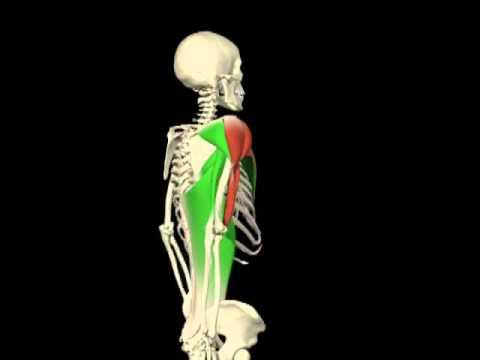 Etapa de desarrollo de la hernia intervertebral