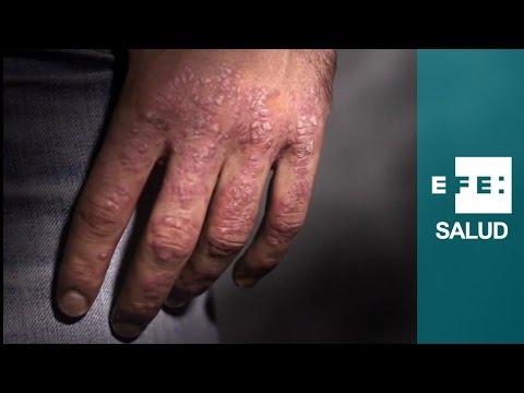 Atopichesky la dermatitis y temperatura 37
