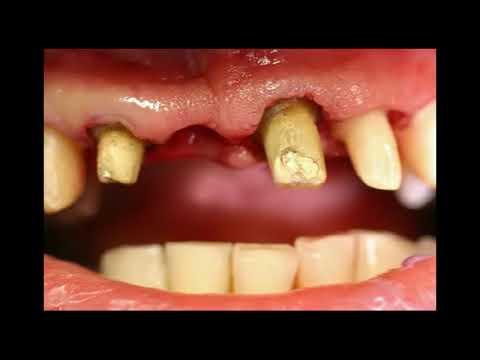 Și tratamentul cu magnet de artroză