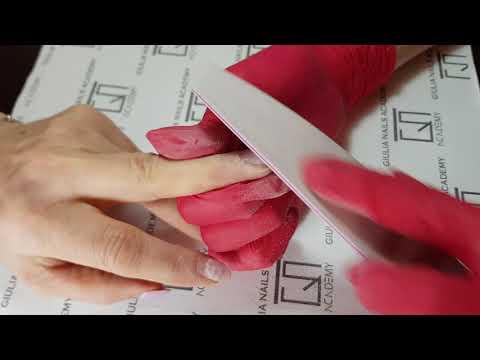 Tratăm artroza degetelor