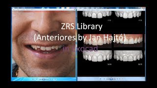 ZRS Libraries(Anteriores by Jan Hajtó)+Exocad/дизайн улыбки с ZRS библиотеками