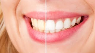 ✅ TOP 5: Best Whitening Toothpaste 2019