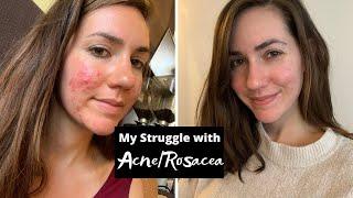 MY STRUGGLE WITH ACNE/ROSACEA - Story Time!