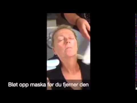 Facial kulitis ng wrinkles