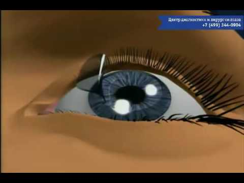 Снижение глазного давления при глаукоме и катаракте
