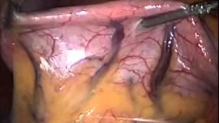 Gastric Bypass Procedure