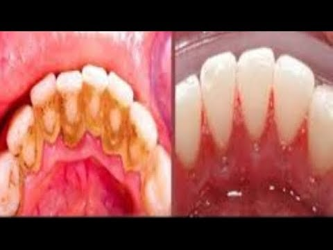 This Not A Joke Remove Dental Plaque In 2 Minutes Without Going To The Dentist