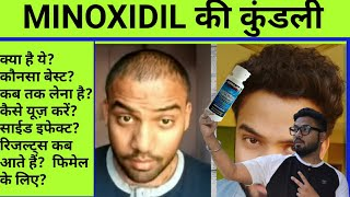 Case study : Virat Kohli's receding Hair Line   Reason of