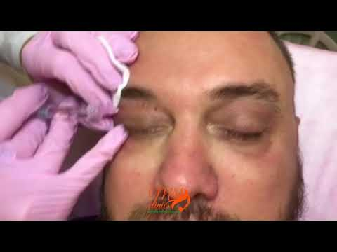 Коллагеновая маска для кожи вокруг глаз секреты лан отзывы