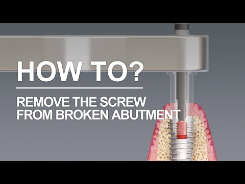 When the abutment is broken and the screw still remains..?