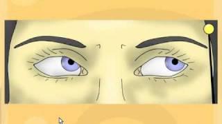 Cranial Nerve 6 palsy