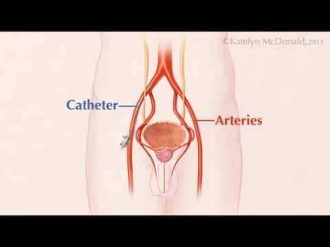 La vitamina B prostatitis