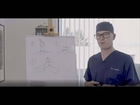 Prostata-Adenom Leben nach der Operation