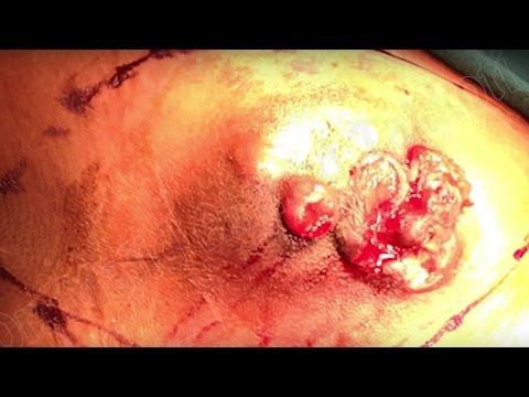 Recenzje zabiegu powiększania piersi