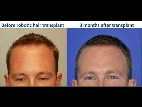 3 Months After Robotic Hair Transplant: Patient is Noticing Results