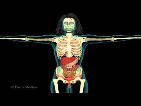 Schmerzen im unteren Rücken gekniffen Nervenwurzel