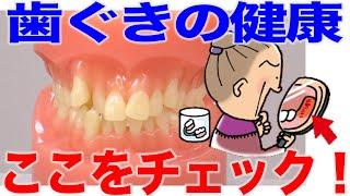 口腔内観察での歯ぐきチェックのポイント