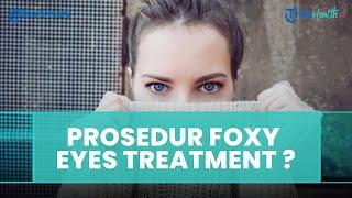 Foxy Eyes Treatment Ramai Dibicarakan di Media Sosial, Begini Prosedurnya Menurut Dokter Kecantikan
