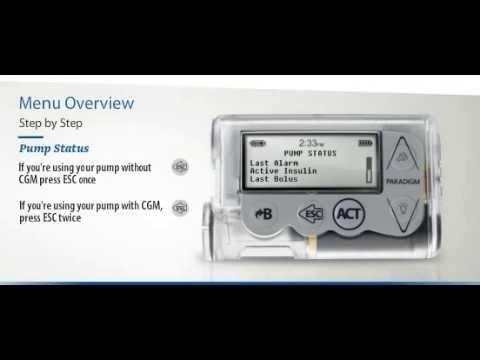 POČETAK RADA  Osnove kontrole dijabetesa s pomoću inzulinske pumpe MiniMedTM Veo™.