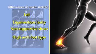 Ankle Sprains and Torn Ankle Ligaments