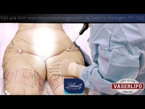 Vaser Hi-Def Lipo Buttock, Flanks, Thighs, Knees, & Calves Long Island NY By Dr.Lebowitz