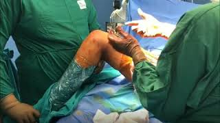 Old sequelae of Slipped Capital Femoral Epiphysis- Safe Surgical Dislocation with Dunn's Osteotomy
